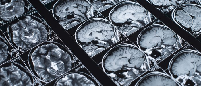 MRI Brain Scan of head and skull